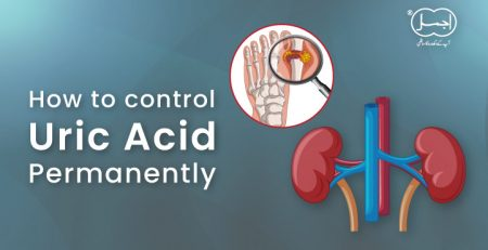 how to control uric acid