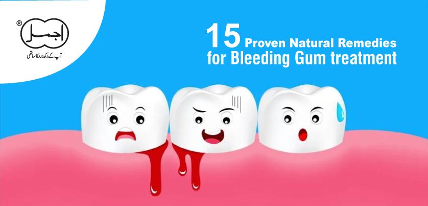 15 proven natural remedies for bleeding gum treatment