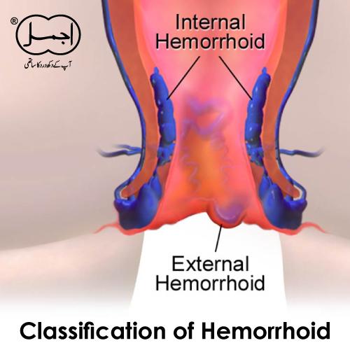 Classification of Hemorrhoid
