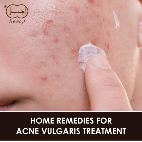 HOME REMEDIES FOR ACNE VULGARIS TREATMENT