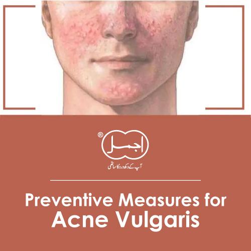 Preventive Measures for Acne Vulgaris