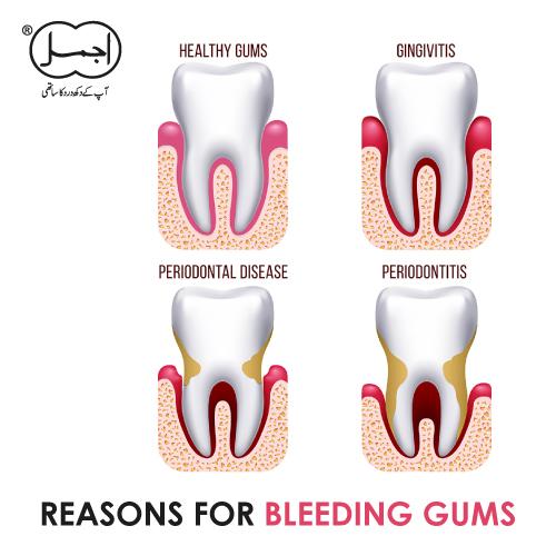 reason for bleeding gum