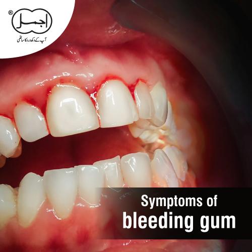 symptoms of bleeding gum